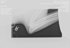 Nasa right elbow