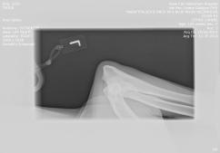 Nasa left elbow