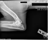 Ollie left elbow
