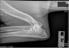 Utah right elbow